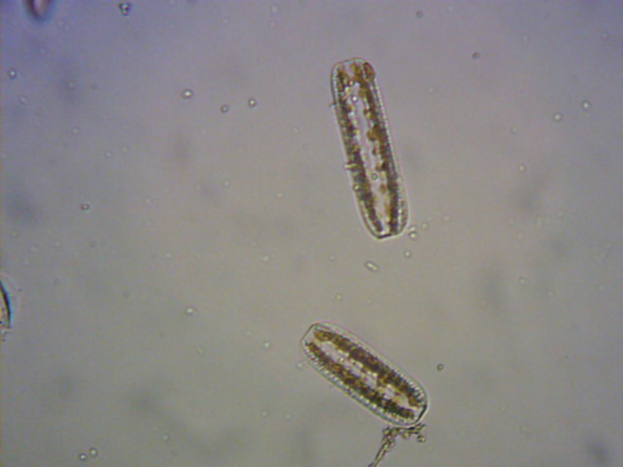 水の中の微生物